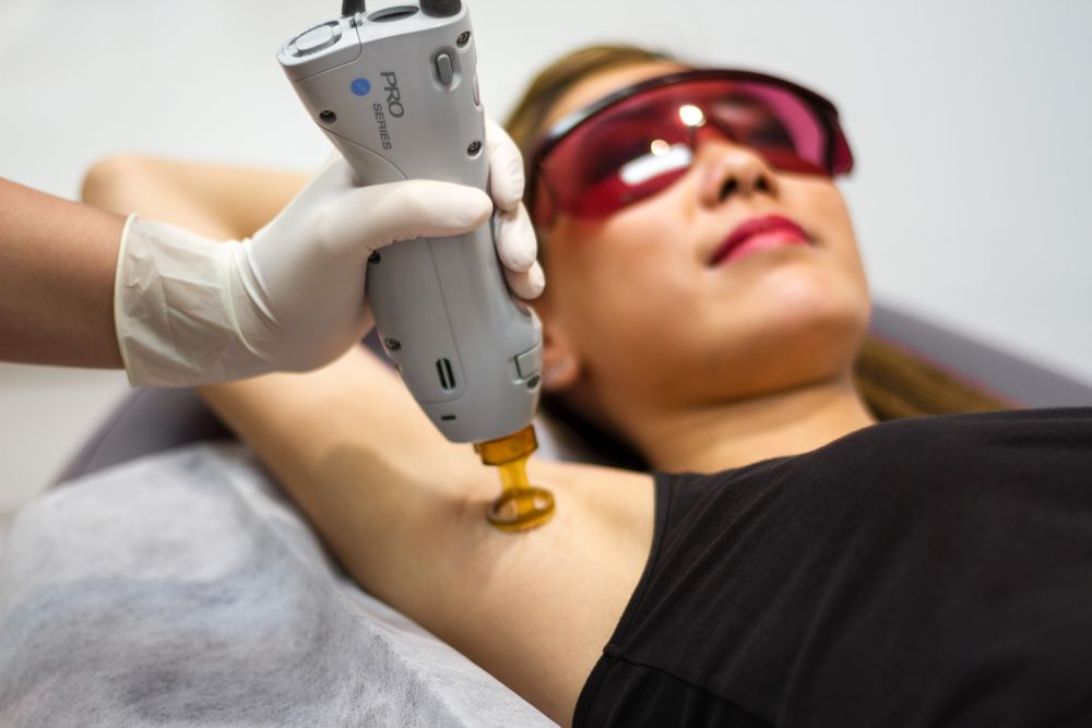 VCDC Laser-Hair-Removal